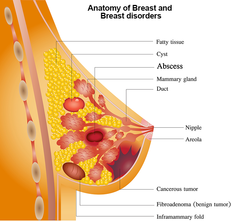 breast disorders