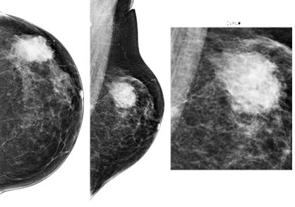 Breast imaging in chennai